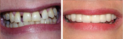 Multiple Teeth Replacement Smile