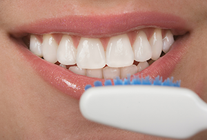 Veneers Westport CT | Dentist Fairfield CT