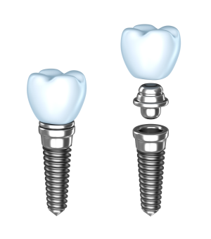Dental Implants in Fairfield, CT